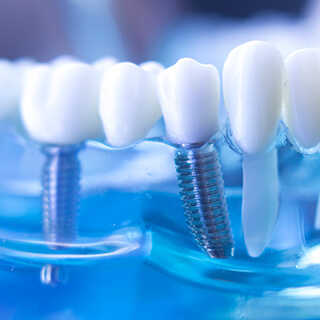 Titanium Alloy steel used in tooth implants